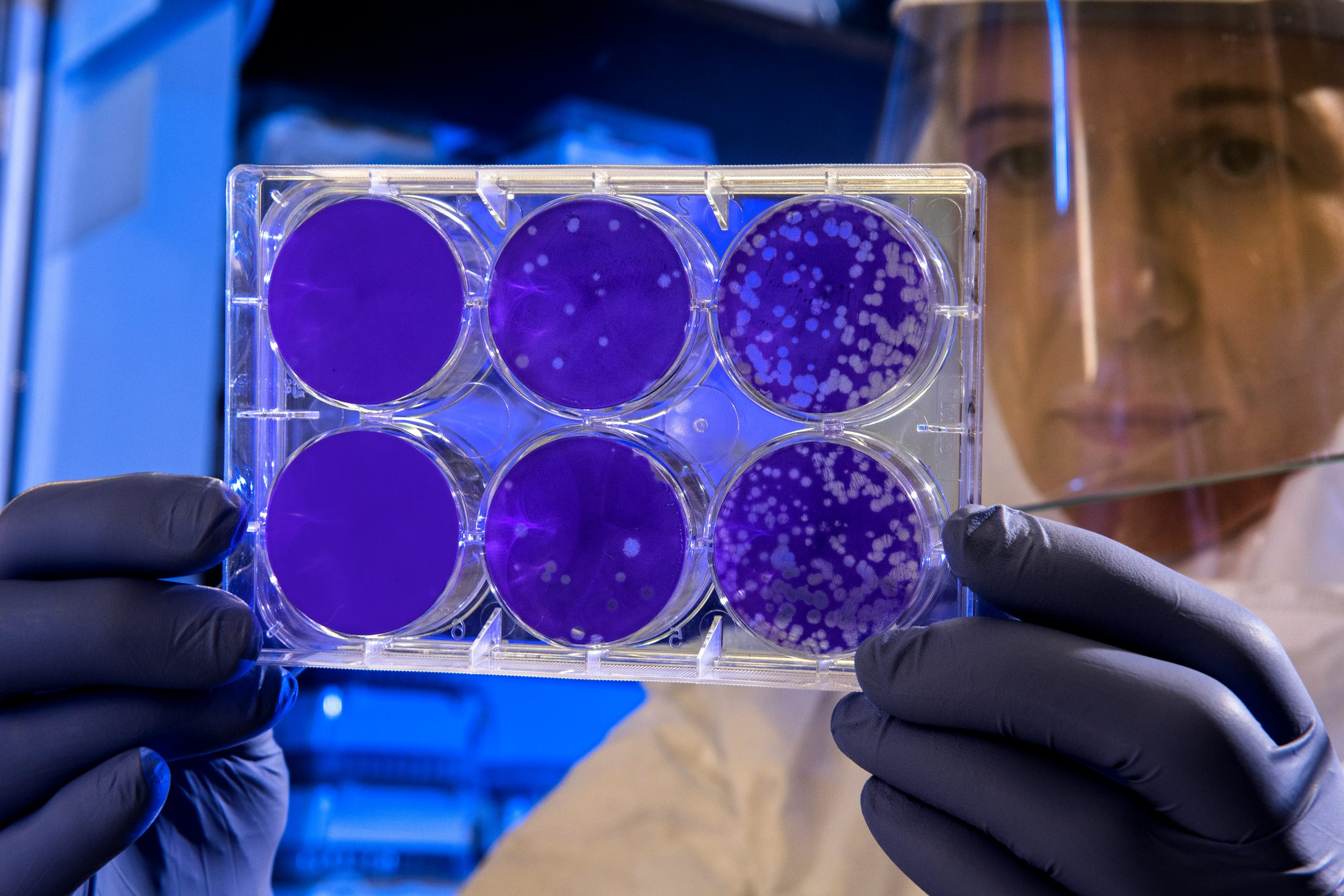 studio dei batteri